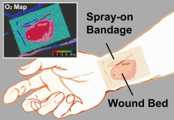 The transparent bandage displays an oxygen-sensitive colormap.Credit: Li/Wellman Center for Photomedicine
