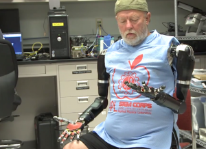 While others have been able to control robotic limbs with their mind, the technique is new enough that dual-control has never been tried before.Credit: Johns Hopkins