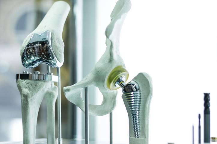 Developing 'Smart' Artificial Limbs - ECS